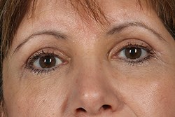 Front View of Brow Lift After