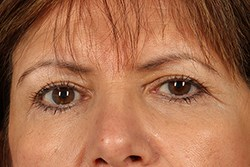 Front View of Brow Lift Before