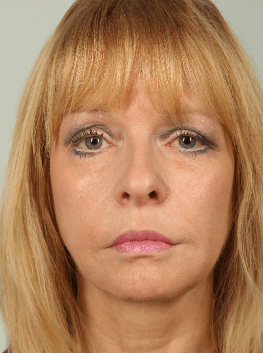 Eyelid Surgery, Laser and Fat Transfer